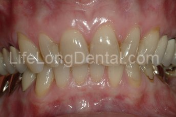 Patient presented with chipped anterior teeth/, and a yellowed smile.
