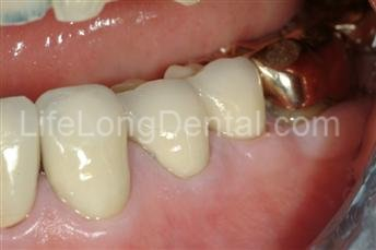 Dr. Sherrard used traditional crowns to replace GERD damaged tooth structure protecting him from future tooth loss.
