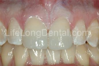 Dr. Sherrard repaired the teeth using composite bonding.
