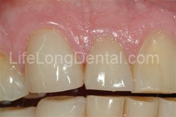 Porcelain used veneers to enhance his smile.
