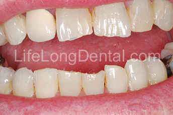 This patient had significantly worn front teeth.