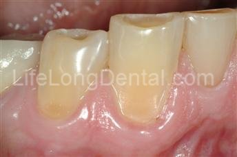 Teeth before installing dental veneers.