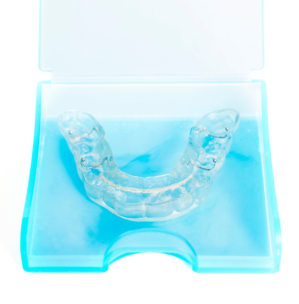 Bruxism nightguard in its case, made by dentist in Silverdale, WA.